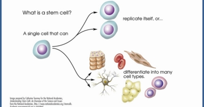 Stem Cell Regenerative Therapy